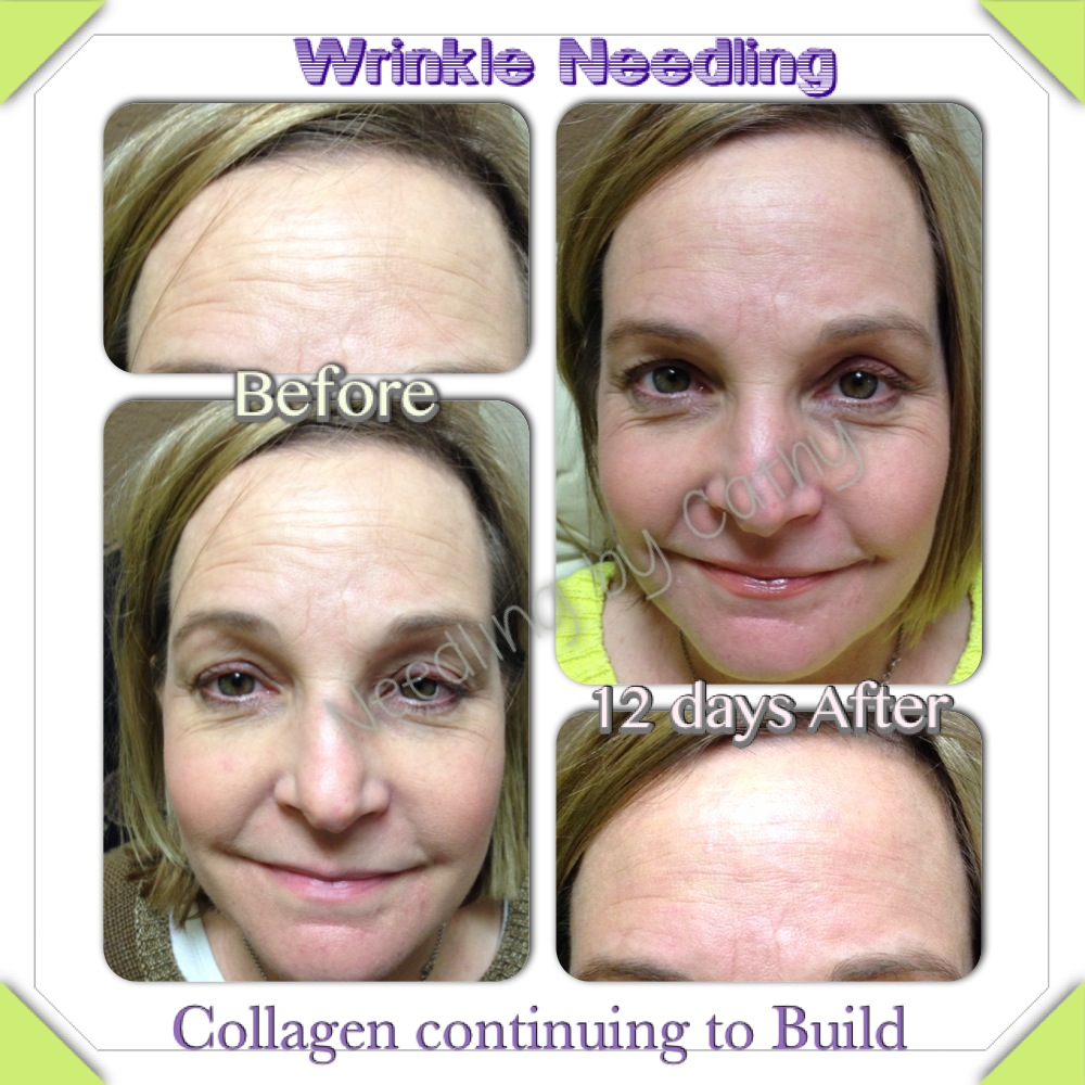 Adorably Ageless Microneedling For Skin Rejuvenation And